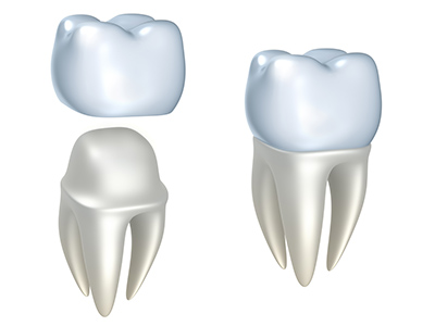 Dental Crowns at Okmulgee Family Dentist