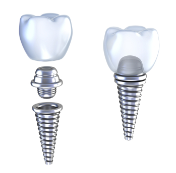 Dental Implants at Okmulgee Family Dentist